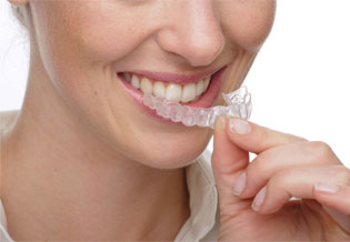 Woman putting on Invisalign retainer