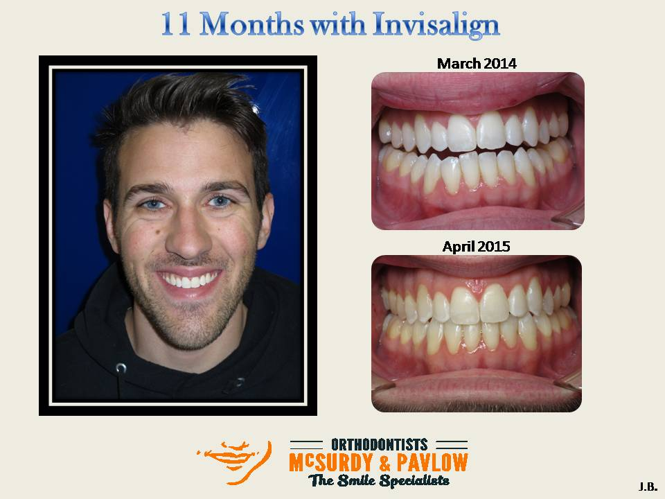 Accelerated Invisalign